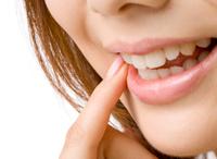 ピーリングによる歯肉の黒ずみ除去
