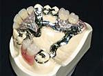 金属床義歯(総入れ歯・部分入れ歯)