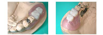フレキサイト義歯(部分入れ歯)