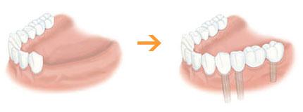 1本から全歯まで対応できるインプラント