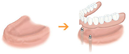 インプラントによる総入れ歯(総義歯)
