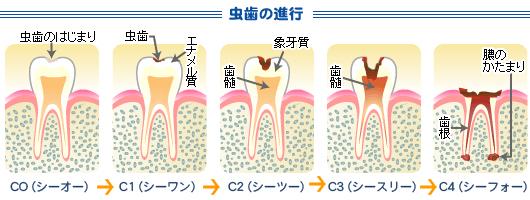 虫歯の進行の流れ